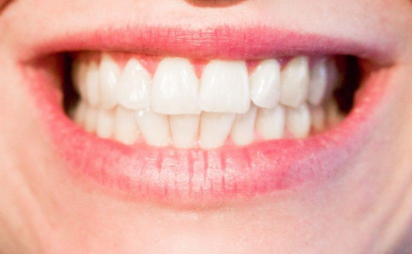 Aktualna technika używana w salonach stomatologii estetycznej może spowodować, że odbierzemy ładny uśmiech.